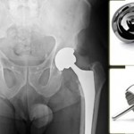 Zimmer Hip Implants